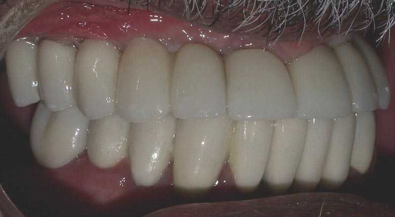 Multiple absent teeth after