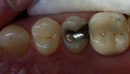Amalgam removal before