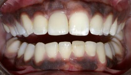 Replace front tooth with bone level implant After