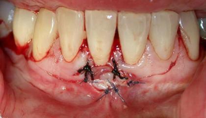 Gum transplant during