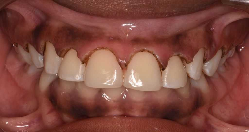 After   Gum contoured