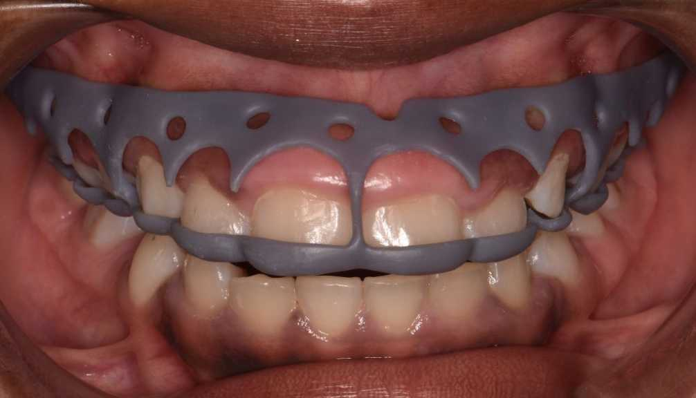 3D printed stent for gum contouring