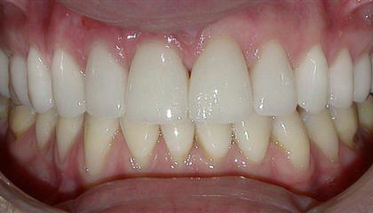 e Max ceramic crowns and veneers after