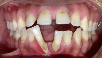 Adult braces before