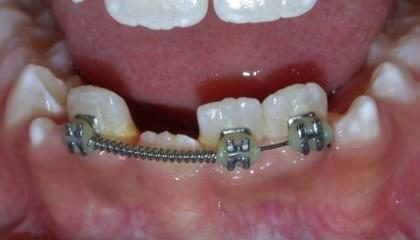 Interceptive braces after