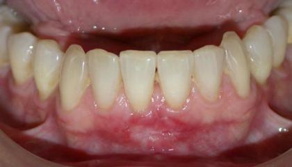 Gum transplant after