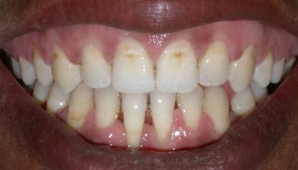 Adult braces after1