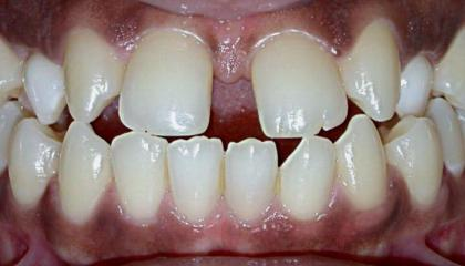 Closure of the gap and changing the canine teeth to laterals