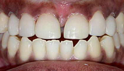 Closure of the gap and changing the canine teeth to laterals after