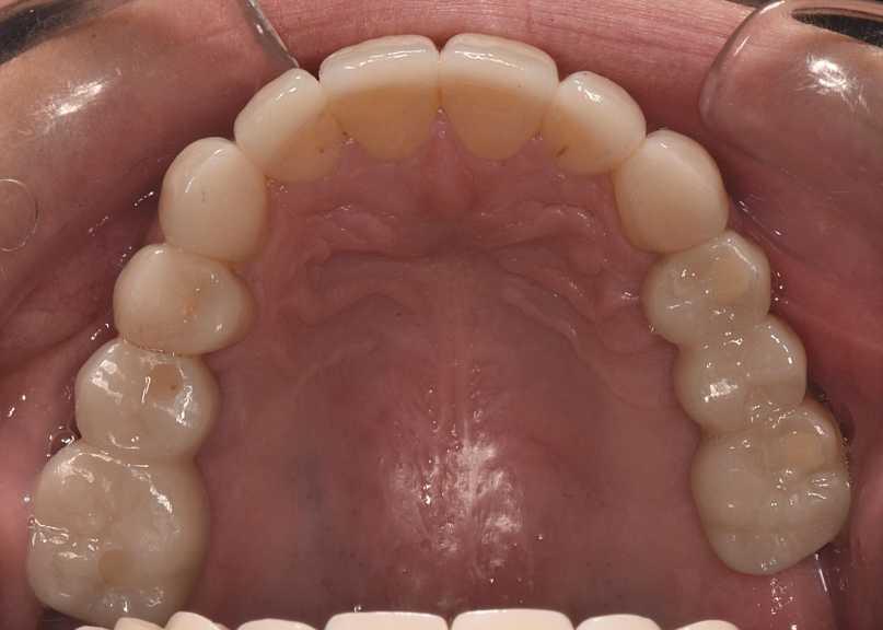 Implant bridges and ceramic veneers
