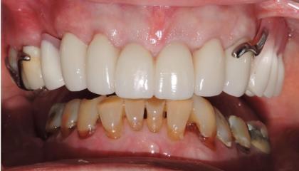 Crown lengthenings, zirconia crowns and metal based partial denture
