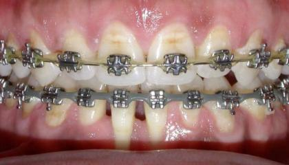 Adult braces during