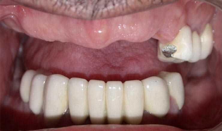 Multiple absent teeth