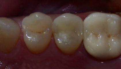 Amalgam removal after