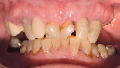 Severely damaged teeth