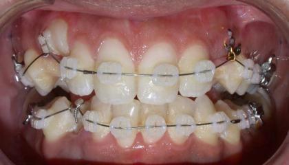 Glass brackets during